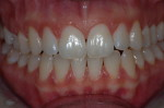 Ästhetische Zahnheilkunde Dr. claudy Stuttgart